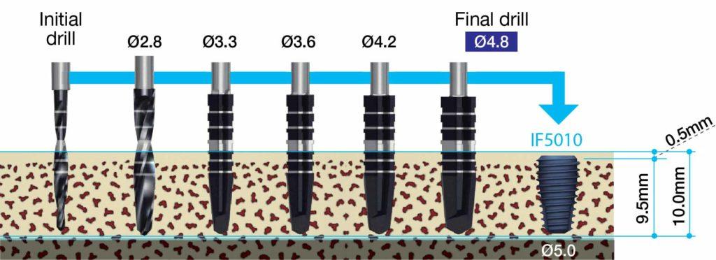 Mege'Gen AnyOne 5.0mm Fixture 安裝範例