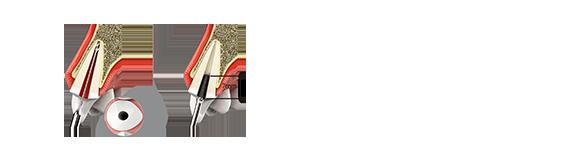 Mega'Gen MEGA Root Membrane Kit 操作流程