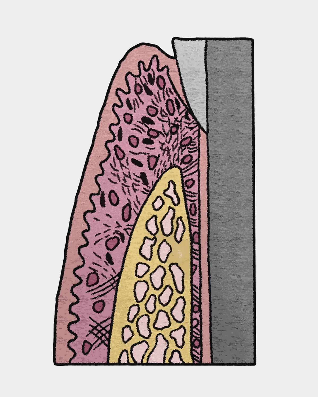纖維骨整合 Fibrointegration
