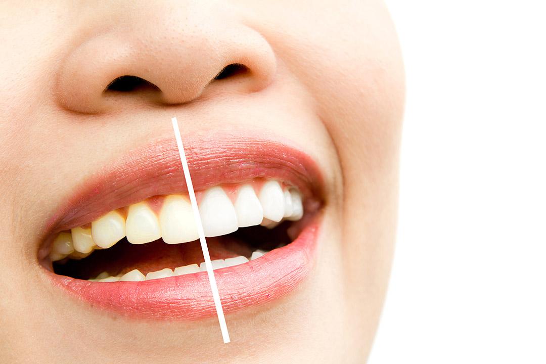 植牙手術前需做美學層次評估