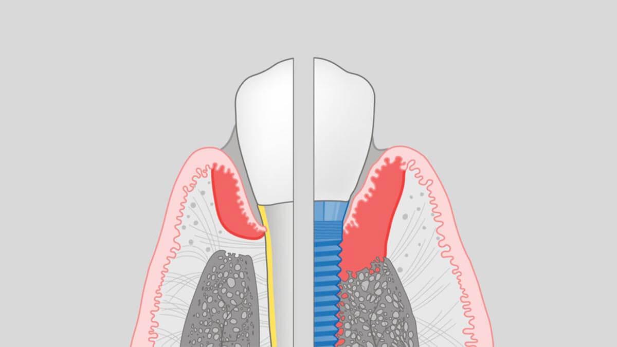 Peri Implantitis 植體周圍炎是植體周圍疾病的一種