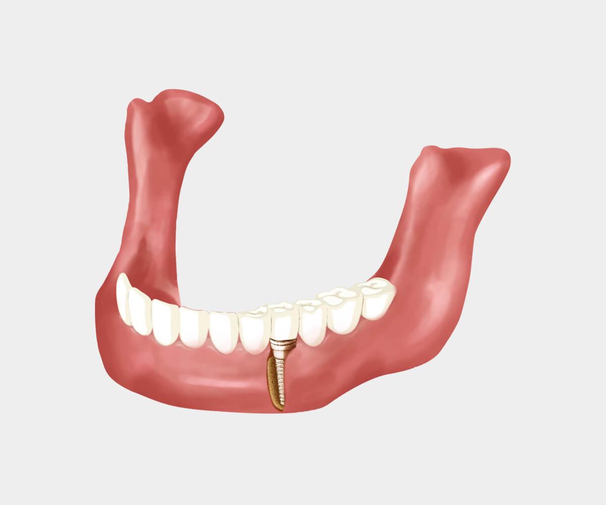 牙根狀(Root Form)植體