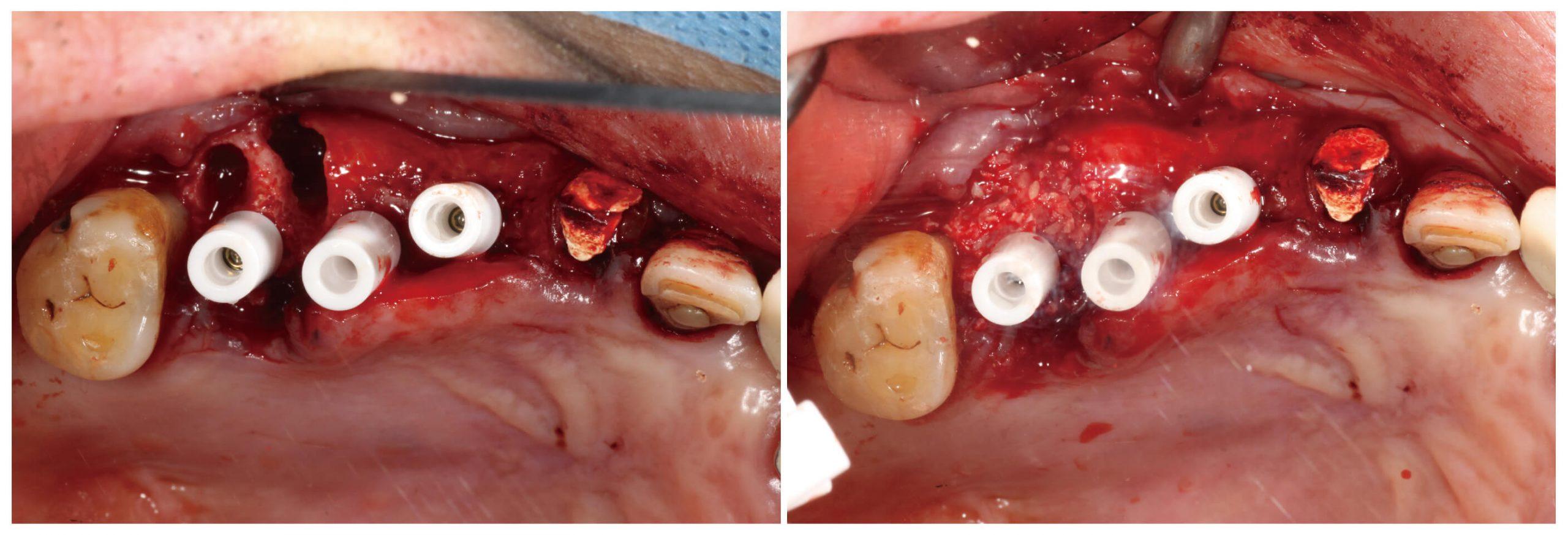 Fig.21-22 執行 GBR 手術、Sutures 與裝上 provisionals