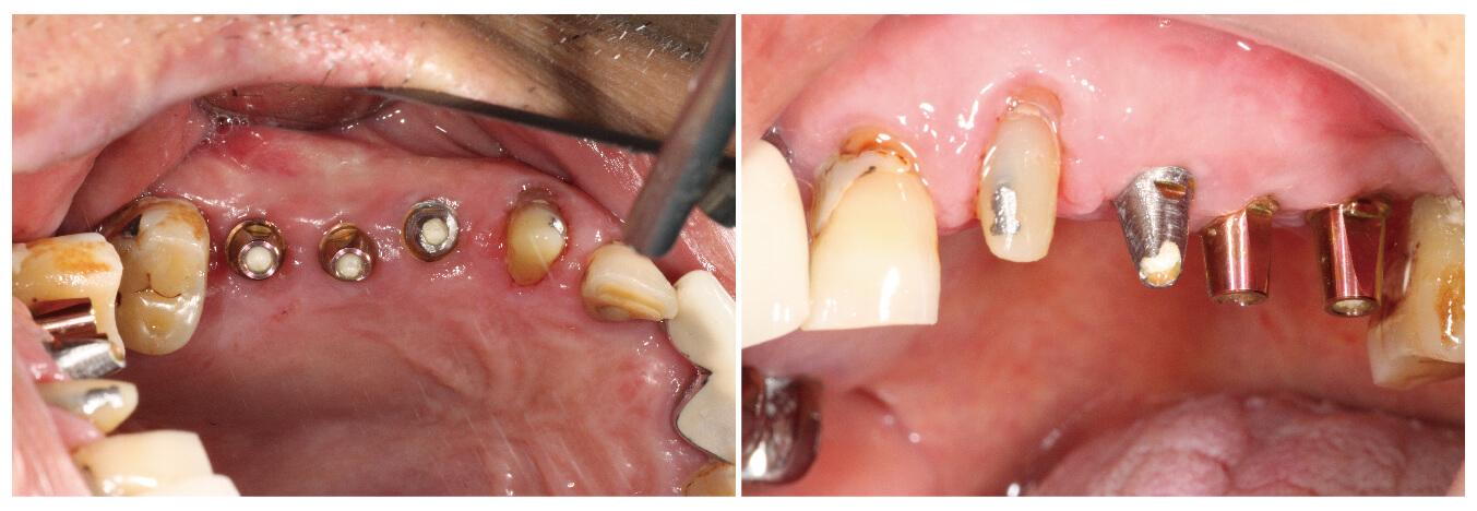 Fig.27 裝上支台齒及最終假牙