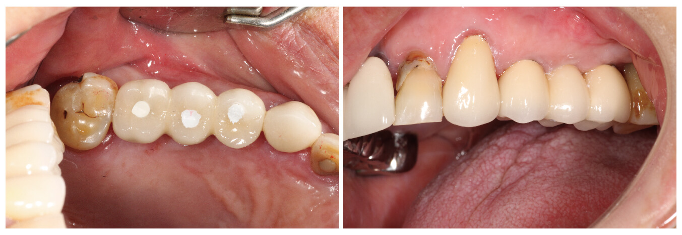 Fig.27 裝上支台齒及最終假牙-2