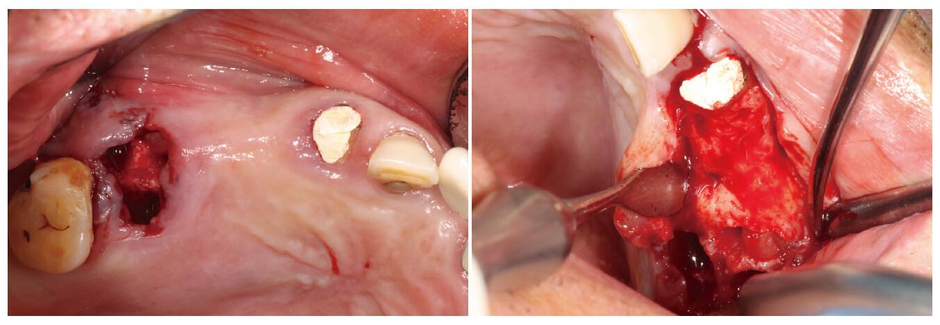Fig.2-3 術前口內照、翻瓣檢視骨缺損情況