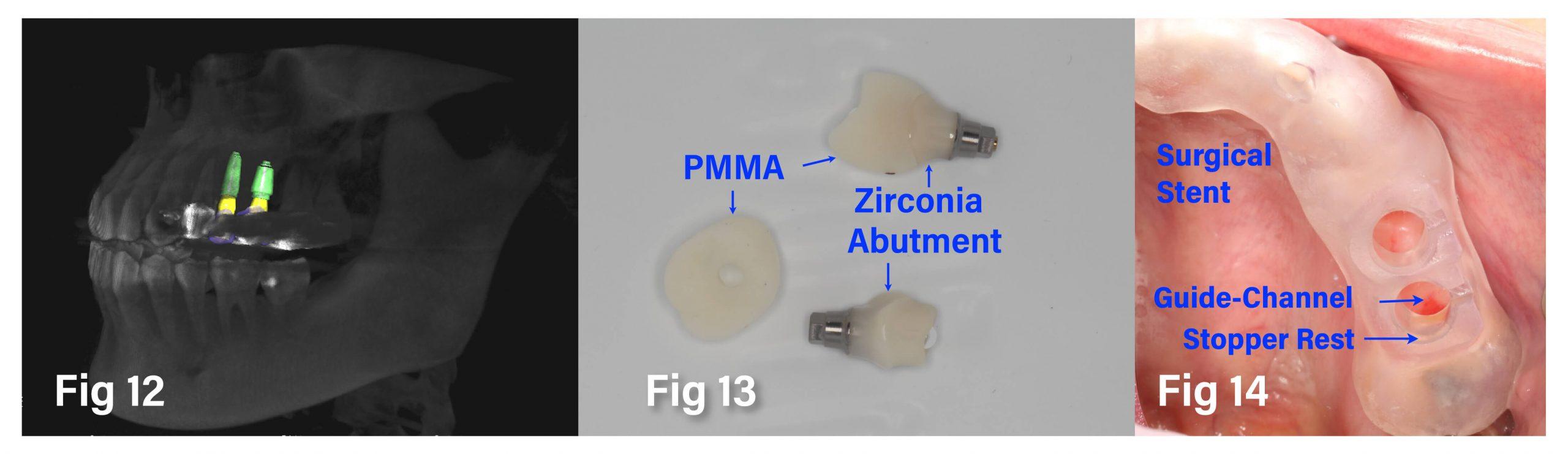 Fig.13-14 完成 Surgical Stent、Zirconia Abutment 和 PMMA Provision 製作