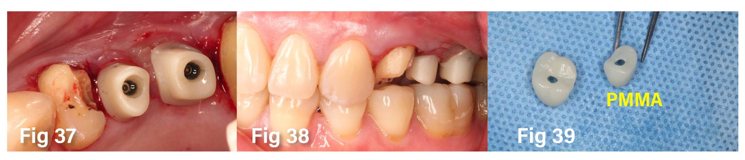 Fig.37-39 植入過程與注意事項 b-3
