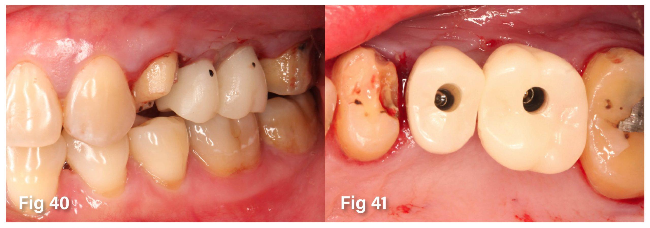 Fig.40-41 植入過程與注意事項 b-5