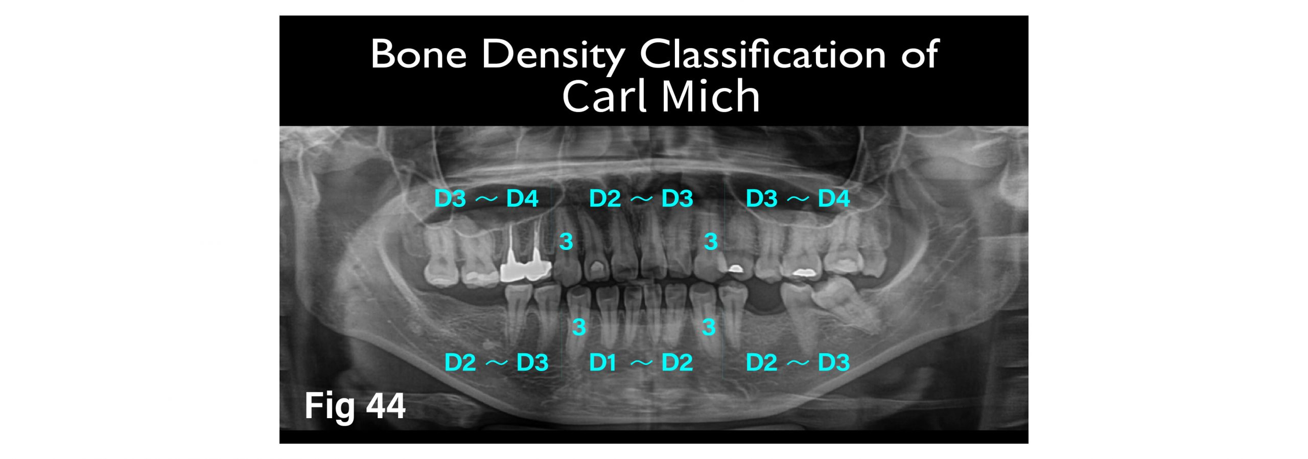 """Fig.44 Carl Mich """"Bone Density Classification"""""""