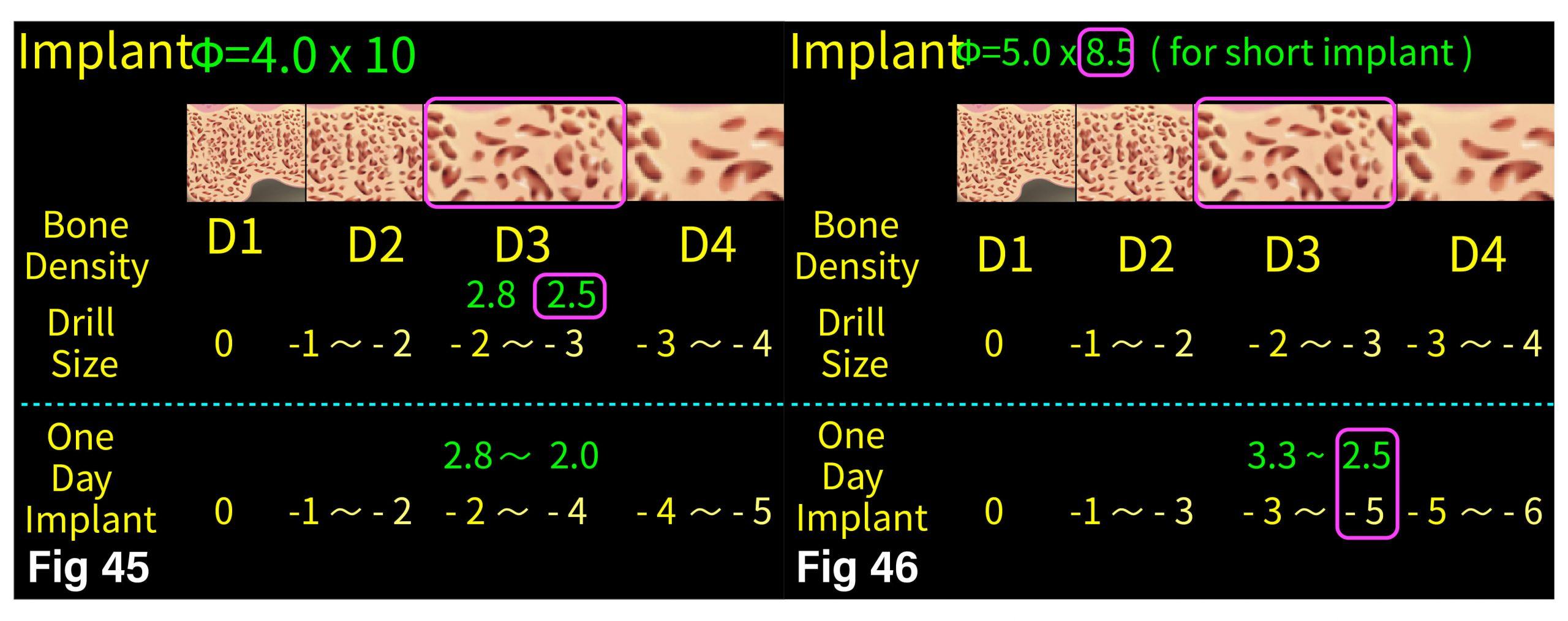 Fig.45-46 Drill 與 Bone Density 對照圖表