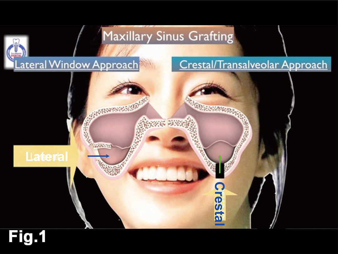Fig.1 Lateral & Crestal Sinus Surgery