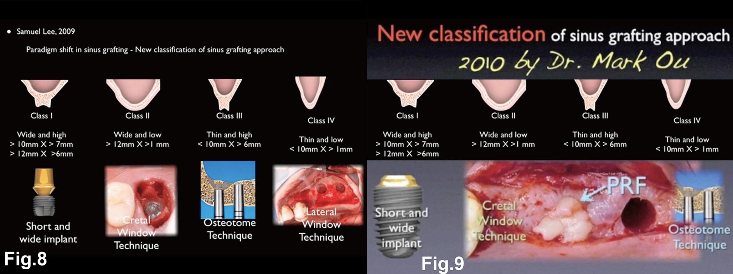 Fig. 8-9 Dr. Samuel Lee 2009 年提出的 CBW 分類