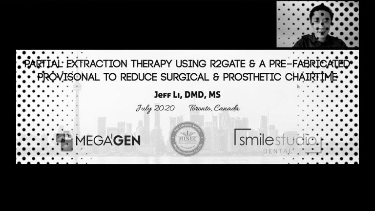 Partial Extraction Therapy Using R2Gate and a Pre-fabricated Provisional to Reduce Surgical and Prosthetic Chair-time